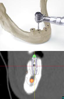 より安全で信頼性の高いインプラント治療のために サージカルガイド